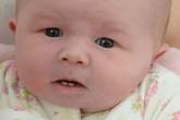 Vừa chào đời, bé sơ sinh đã mọc 2 răng