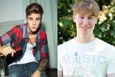 Chi 2,1 tỷ để phẫu thuật thành... ca sĩ Justin Bieber