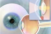 Phát hiện, phòng ngừa và điều trị một số bệnh lý về mắt do lão hóa