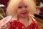 Cuộc sống của bé gái Anh có mái tóc giống thiên tài Vật lý Einstein