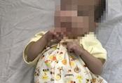 Căn bệnh khiến bé trai 7 tháng tuổi nhỏ như trẻ sơ sinh