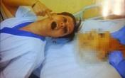 Italy: Cả nước phát sốc với bức ảnh nữ hộ lý chụp bên cạnh xác chết