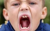 Lạ kỳ cậu bé có 4 hàm răng