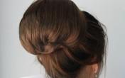 Búi tóc nặng 4 kg trong bụng cô gái