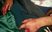 Bé 6 tuổi bị chém đứt bộ phận sinh dục vì làm ồn