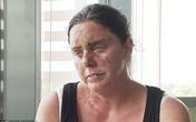 Xót thương người phụ nữ trẻ bị tạt axit mù một mắt