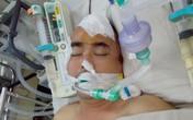 Nguyễn Hoàng vẫn hôn mê sau một tuần phẫu thuật