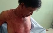 Bị đánh, vợ tạt cháo nóng vào chồng