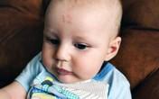 Kỳ lạ bé sinh ra có vết bớt hình số 12 trên trán