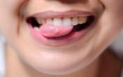 Đoán bệnh của bạn qua những biểu hiện ở lưỡi