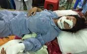 Hé lộ nguyên nhân người chồng cắt gân tay, gân chân vợ ở Bắc Giang
