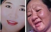 Thai phụ mang họa vì tự ý dùng thuốc dị ứng