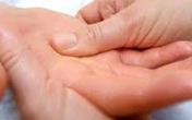 Hỏi-đáp thuốc chữa bệnh ra mồ hôi tay chân
