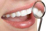 Cấy ghép Implant – Giải pháp trồng răng bị mất
