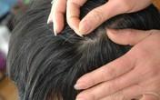 Ăn mặn khiến người trẻ dễ bạc tóc