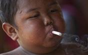 Cậu bé 5 tuổi hút 40 điếu thuốc ngày ấy bây giờ ra sao?