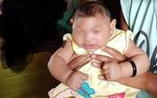 Bé gái 4 tháng tuổi ở Đắk Lắk nghi mắc chứng đầu nhỏ trong hoàn cảnh nào?