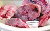 6 thực phẩm có nguy cơ hủy hoại não nhiều nhất