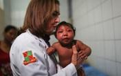 Thai phụ nhiễm virus Zika có phải bỏ em bé?