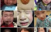 8 học sinh mẫu giáo bị bỏng mắt vì đèn cực tím diệt khuẩn