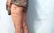 Bé gái 8 tuổi bị cô giáo đánh lằn người chỉ vì tiếp thu chậm gây phẫn nộ