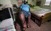 Mắc bệnh lạ, người đàn ông có bàn chân nặng... 100kg