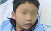 Bé trai 7 tuổi nhập viện vì nuốt phải đầu bút bi