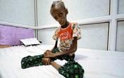 Thiếu nữ 18 tuổi gầy trơ xương vì đói ăn ở Yemen