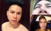 Hoàng Tôn 'cầu cứu' cộng đồng vì khuôn mặt lỗi sau thẩm mỹ