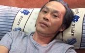 """Những """"tật xấu"""" của Hoài Linh khiến fan phiền lòng, lo lắng"""