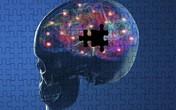 5 tác nhân nguy hiểm giết chết tế bào não
