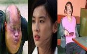 """Bi kịch dàn sao """"Tuyệt đỉnh Kungfu"""": Người bệnh tật, kẻ không có nhà để ở"""