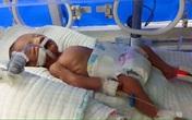 Xót xa gia đình bố bại liệt, mẹ mất do tai nạn, con sinh thiếu tháng nguy kịch