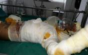 Hoàn cảnh éo le của gia đình bé trai sang nhà hàng xóm xem nướng mực bị bỏng nặng khiến hai chân hoại tử