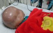 Các nhà hảo tâm không kìm được nước mắt khi bé trai mắc bệnh đầu to qua đời
