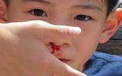 Trẻ bị chảy máu cam, cách bố mẹ vẫn làm thế này sẽ càng làm hại con