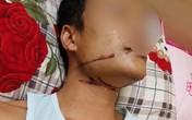 HI HỮU: Suýt mất mạng vì bị dây cáp viễn thông siết vào cổ?