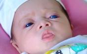 Từ trường hợp em bé sơ sinh có đôi mắt xanh biếc, sàng lọc trước sinh có phát hiện được không?