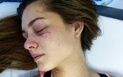 Một hoa hậu bị hành hung chấn thương cột sống