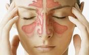 Kỳ diệu 3 bài thuốc chữa viêm xoang cực hiệu quả từ thảo dược