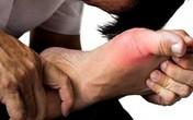 Người nào dễ bị bệnh gút?
