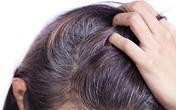 Đau đầu về tóc bạc sớm và đây là cách chuyên gia khuyên bạn