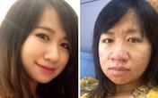 Cô giáo kể chuyện mang bầu xấu đến mức chồng cấm soi gương
