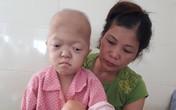 Xót xa bé gái tàn tật lại mắc bệnh ung thư