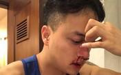 Cao Thái Sơn đi cấp cứu lúc nửa đêm