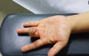 Ai dễ mắc bệnh lý ngón tay lò xo?