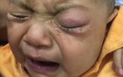 Bé 7 tháng tuổi hỏng mắt vì mẹ nhỏ sữa mẹ chữa đỏ mắt