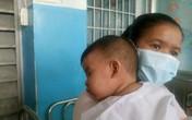 Sởi không có dấu hiệu ngừng tăng, Bộ trưởng Y tế yêu cầu giám sát chặt các ca mắc