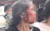 Phú Thọ: Con rể chém mẹ vợ trọng thương xong thản nhiên ngồi hút thuốc