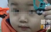 Bé trai 3 tuổi bị mù suốt 10 ngày chỉ vì bị cảm lạnh nhưng không điều trị dứt điểm